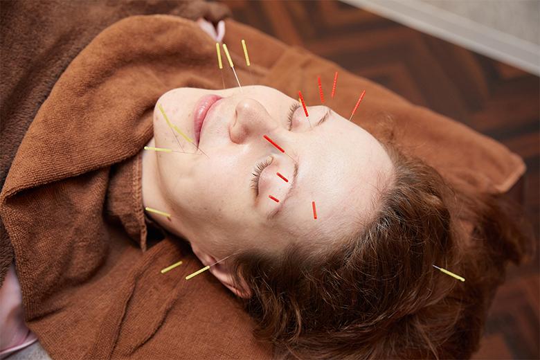 ブレアの美容鍼の特徴