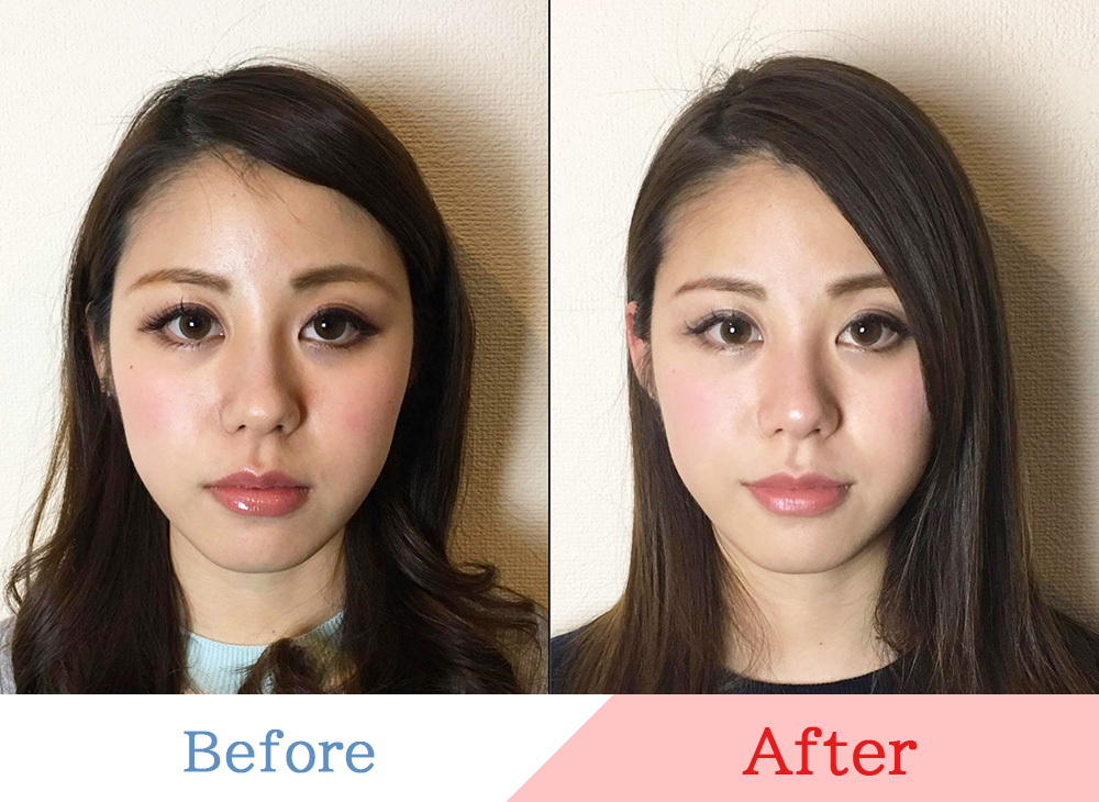 bfore&after1